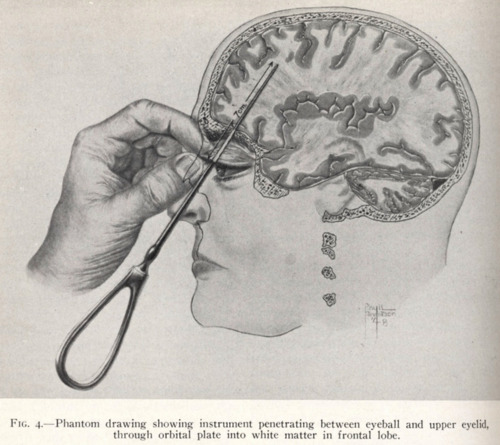 Early diagram of the transorbital lobotomy.