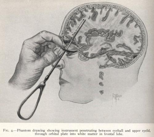 Early diagram of the transorbital lobotomy.